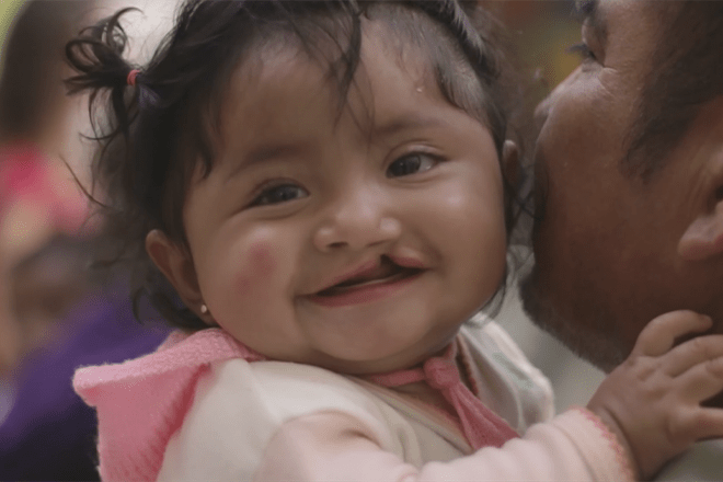 Operation Smile Video